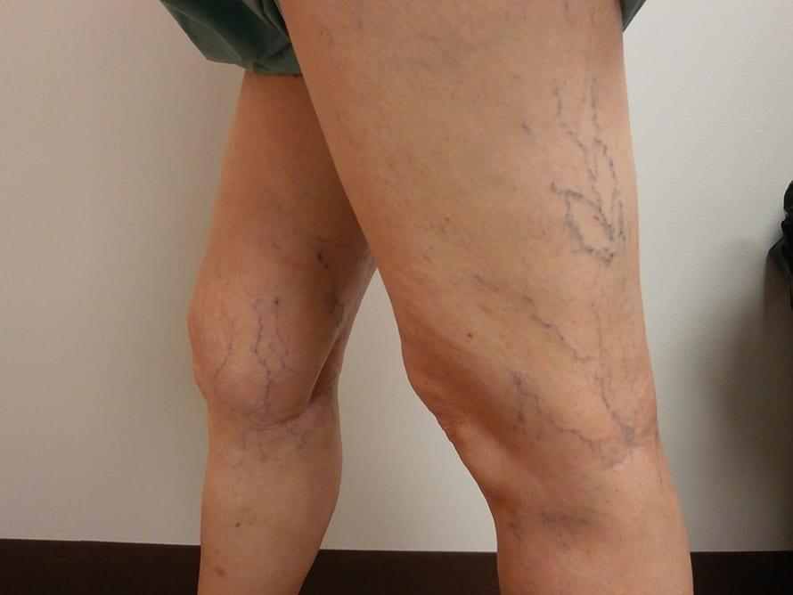 Gel din vene varicoase pe picioare - Varicose
